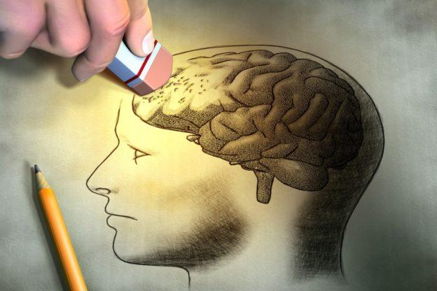 Cerebro-borrador-alzheimer