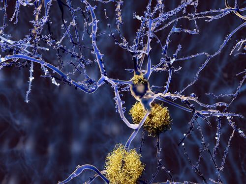 Sinapsis-neuronas-alzheimer