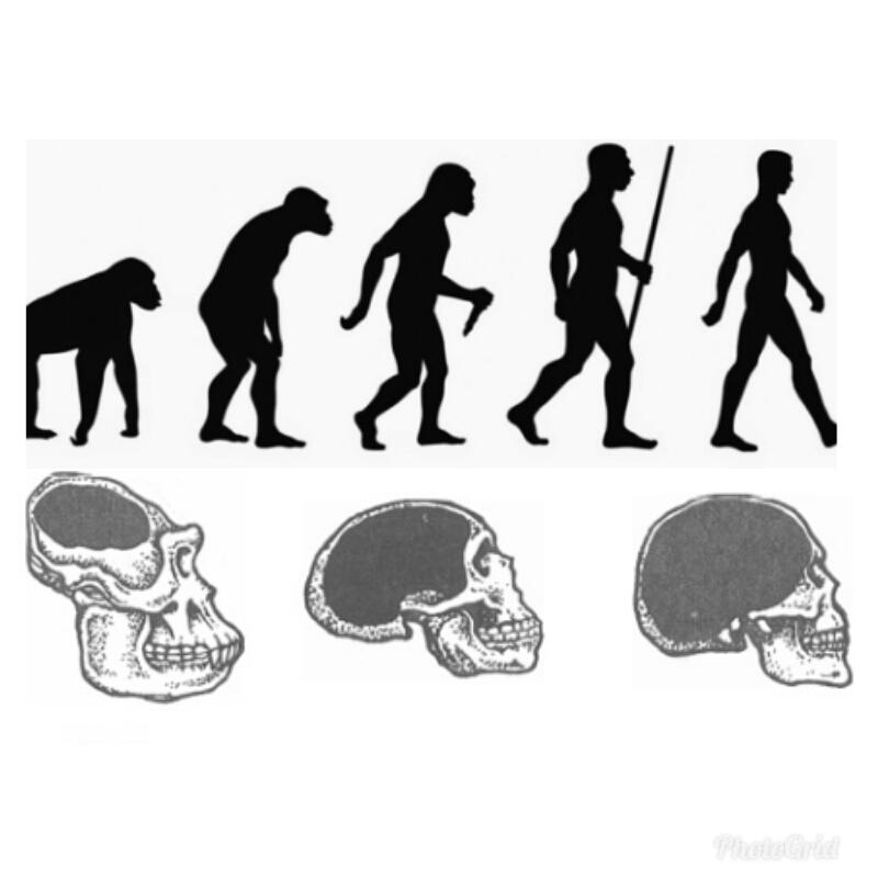 evolución-cerebro-alzheimer