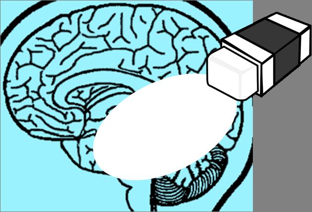 borrador-cerebro-alzheimer2