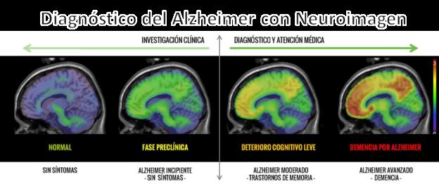 neuroimagen-alzheimer