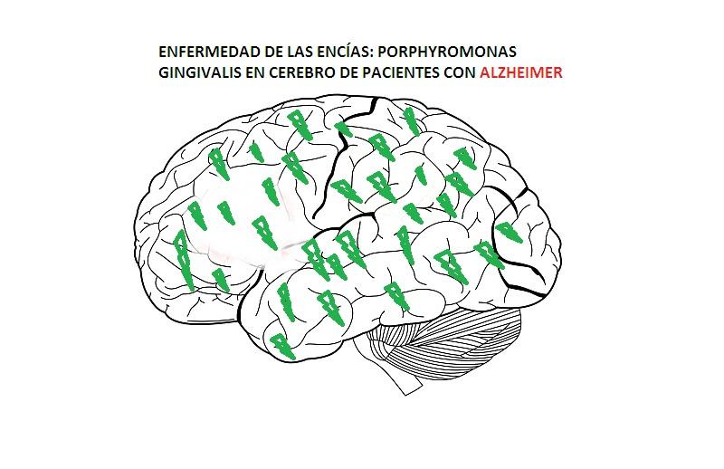 ENFERMEDAD-ENCIAS-ALZHEIMER