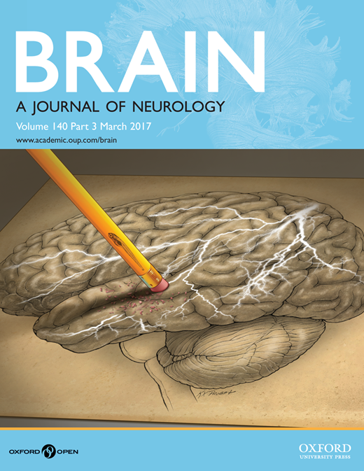 brain-journal-of-neurology-alzheimer