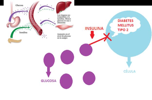 diabetes de estimulación nerviosa