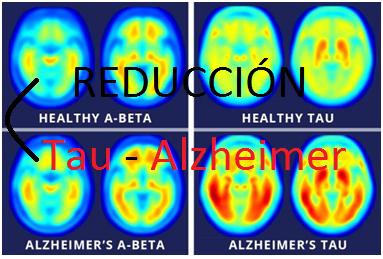reducción-tau-alzheimer